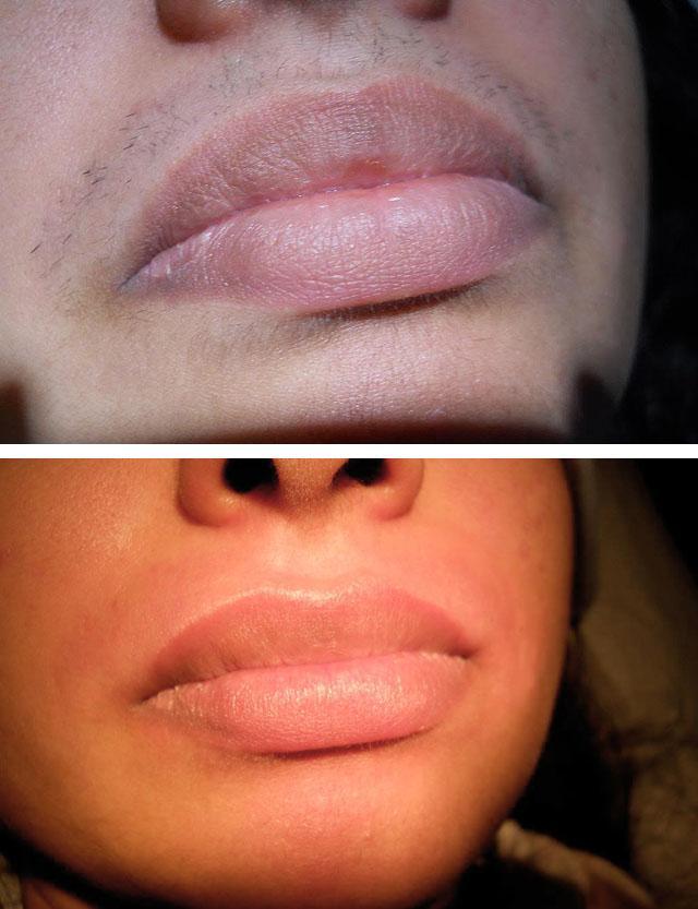 фото электроэпиляции верхней губы 2