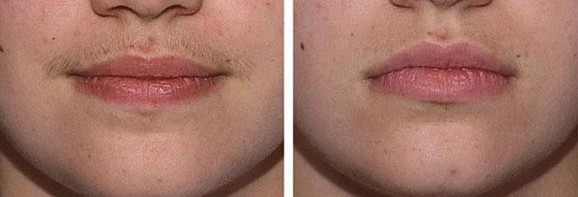фотоэпиляция верхней губы