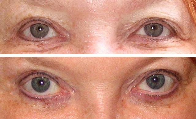 карбокситерапия для коррекции морщин и птоза век