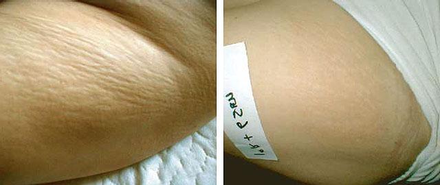 cellulite operieren