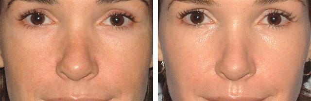 карбоновый пилинг лица