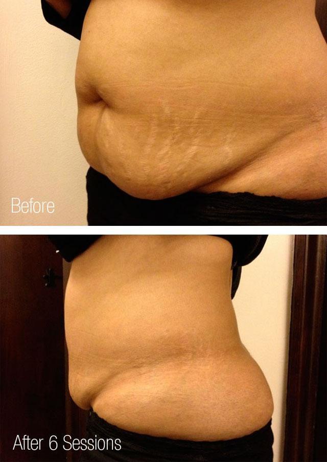 Растяжки на коже после похудения и до 2