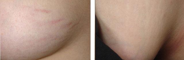 лазерное удаление стрий на груди фото