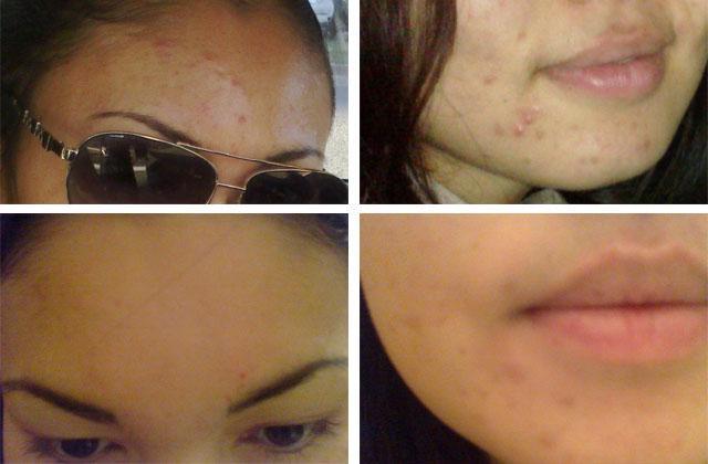 до и после мануальной чистки лица