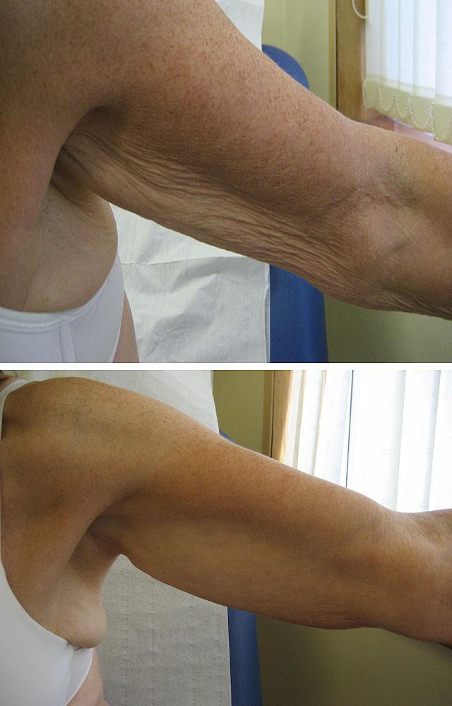 процедура карбокситерапии для коррекции птоза и дряблости кожи