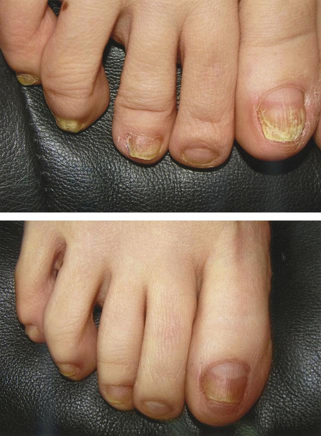 Лечение грибка ногтей азотом