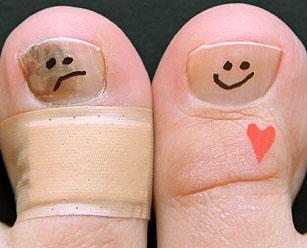 Лечение грибка ногтей лазером в екатеринбурге