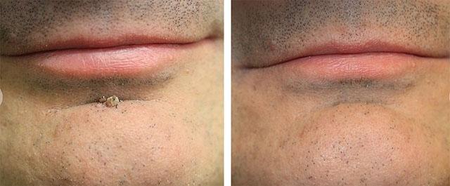 удаление бородавок на лице