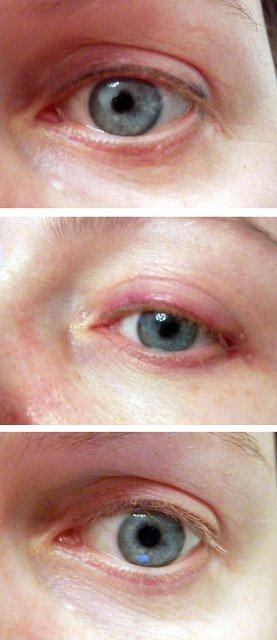 Удаление татуажа глаз отзывы