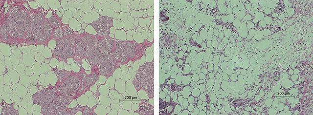 жировая ткань до и после инъекции липолитика