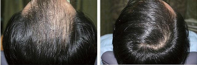 Мезотерапия dermaheal hl для волос