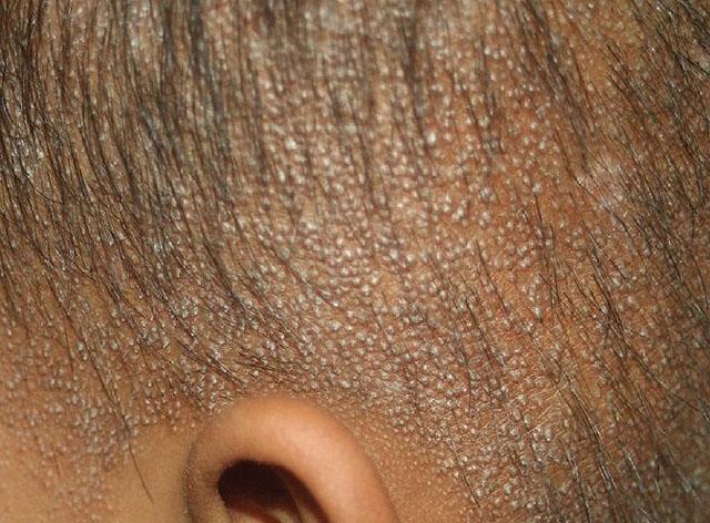 Клиническая картина фолликулярного гиперкератоза кожи головы