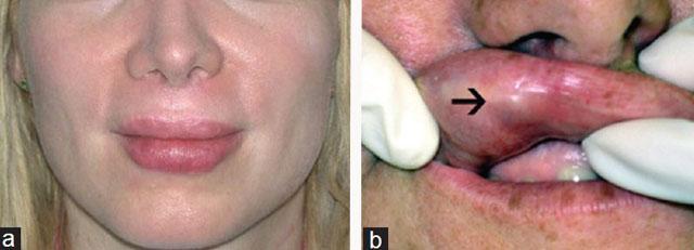 Гранулемы на губах после филлеров