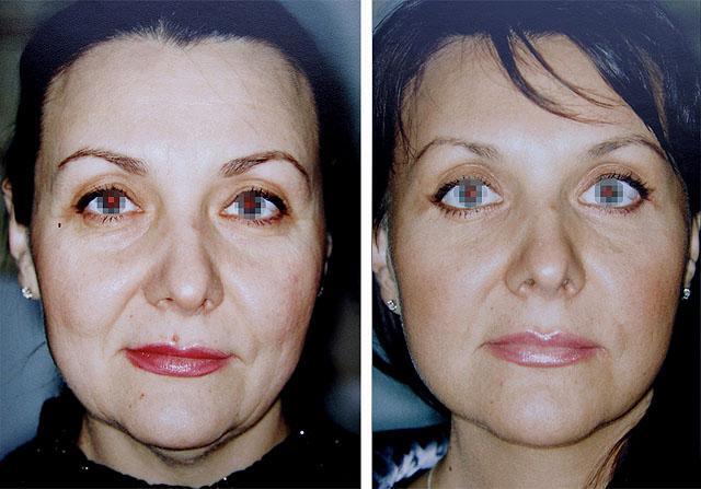 фото до и после круговой подтяжки лица