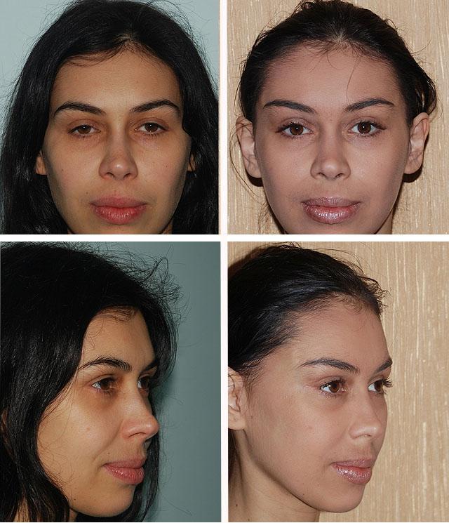 фото до и после подтяжки бровей и лба
