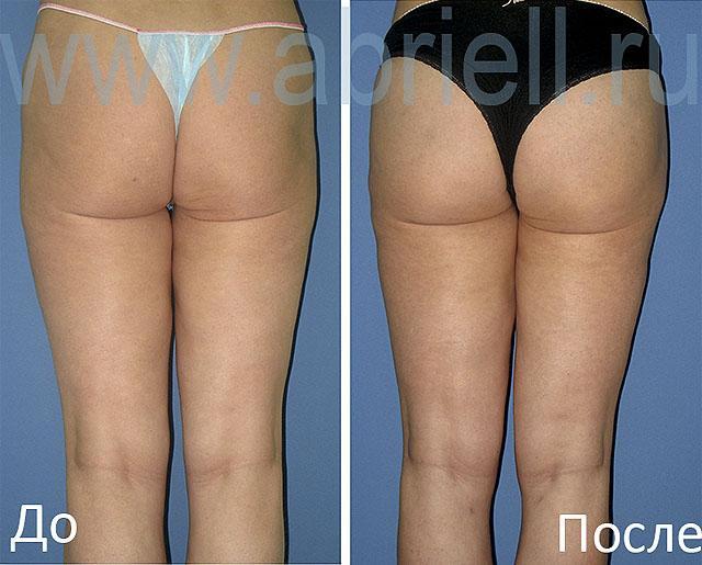 операционные методы похудения