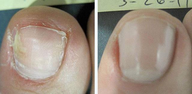 Чем лечить грибок на коже большого пальца