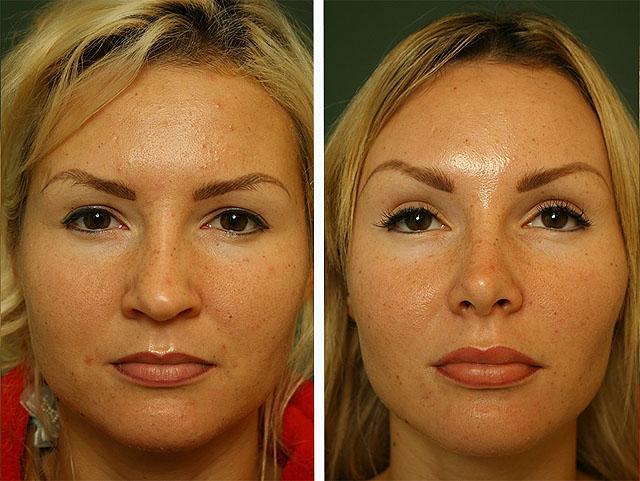 лазерное омоложение лица от к