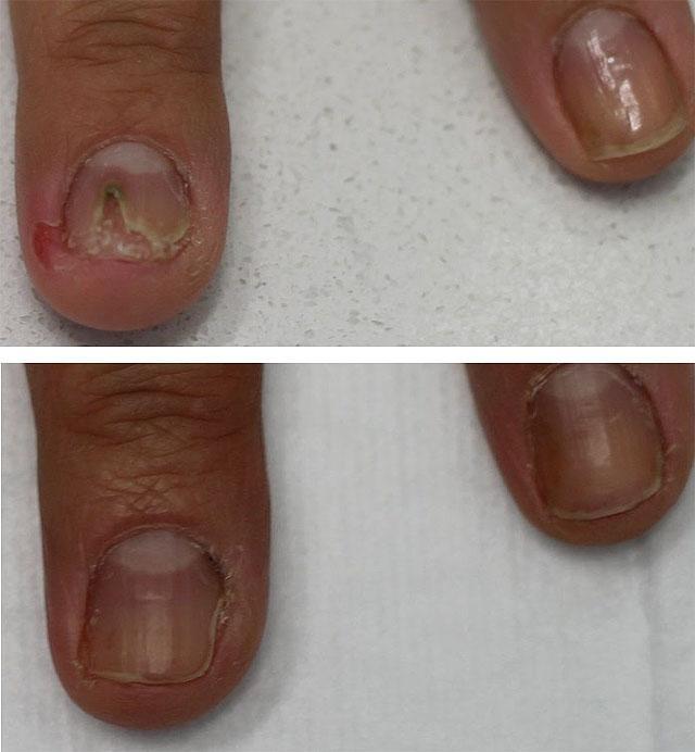Экзодерил от грибка ногтей отзывы цена