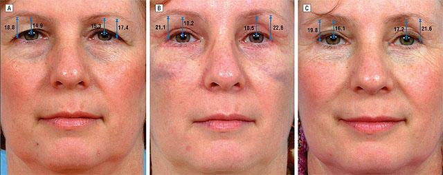Лифтинг верхней трети лица эндотинами и блефаропластика