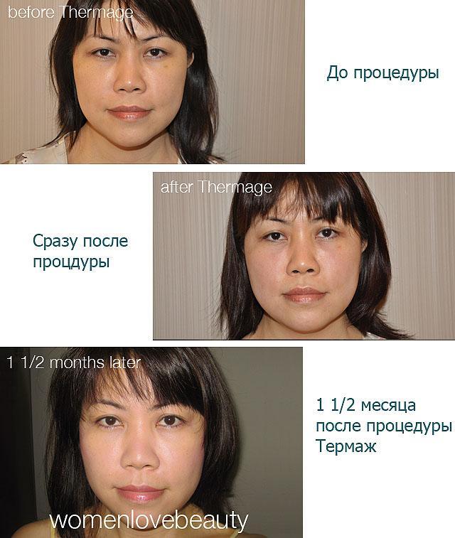 Термаж (Thermage) лица и тела: противопоказания, проведение, последствия