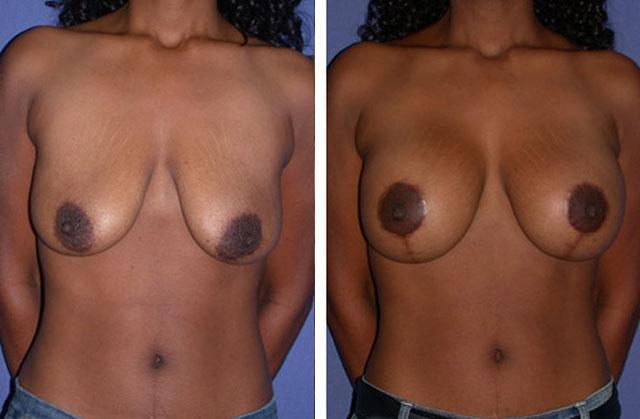 аугментарная мастопексия