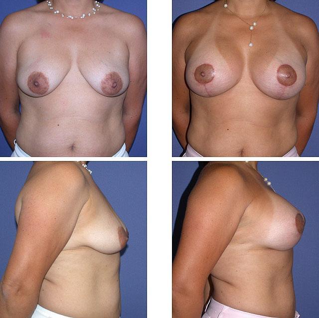 Вертикальная мастопексия с установкой имплантов