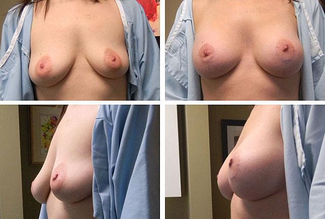 Аугментационная вертикальная мастопексия