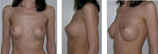 Состав имплантов груди