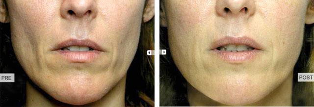 фото до и после биореволюметрия