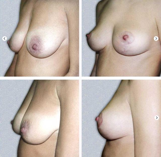 фото до и после вертикальной мастопексии