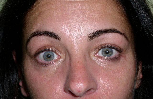 """Осложнение после блефаропластики, выраженное в синдроме """"круглого глаза"""""""