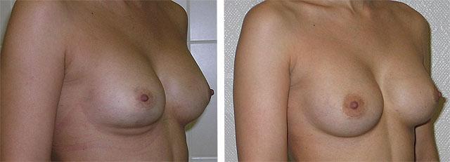Маммарный фиброз правой груди