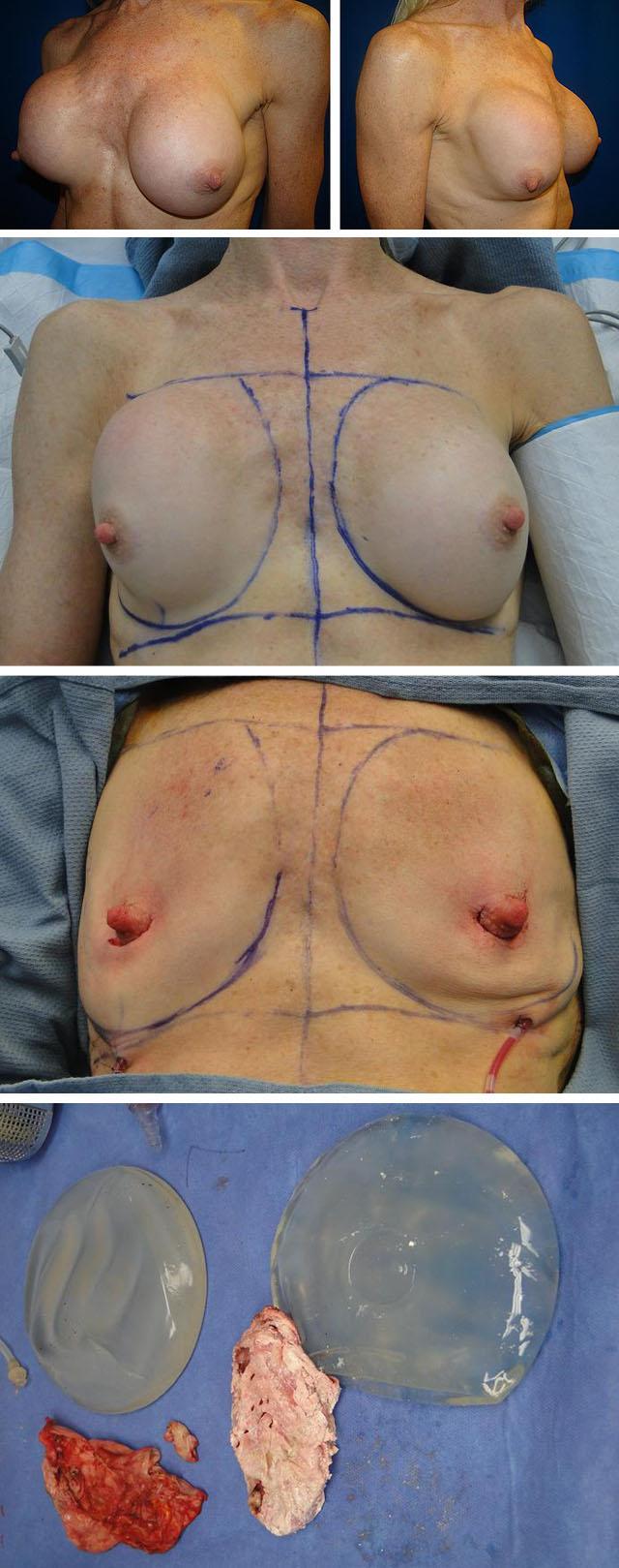 лечение капсулярной контрактуры