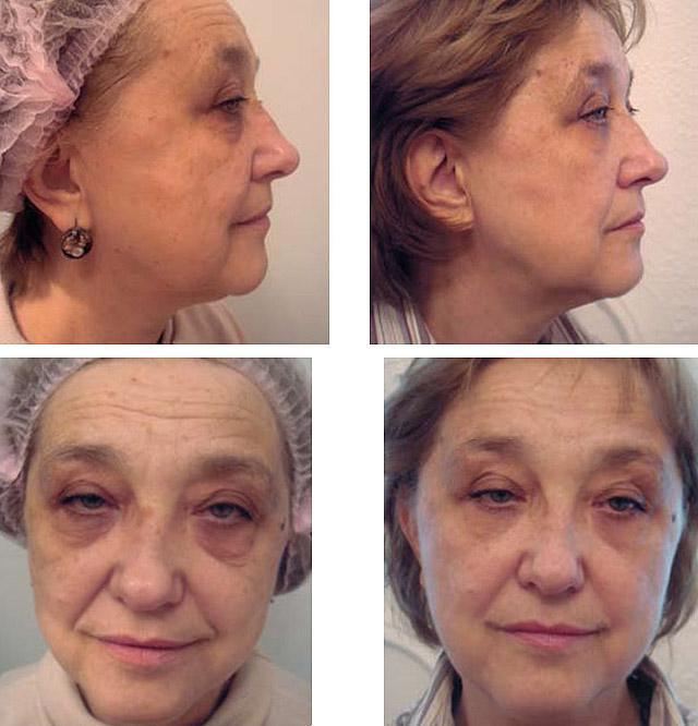 Возраст пациентки 62 года, курс из 6-ти сеансов