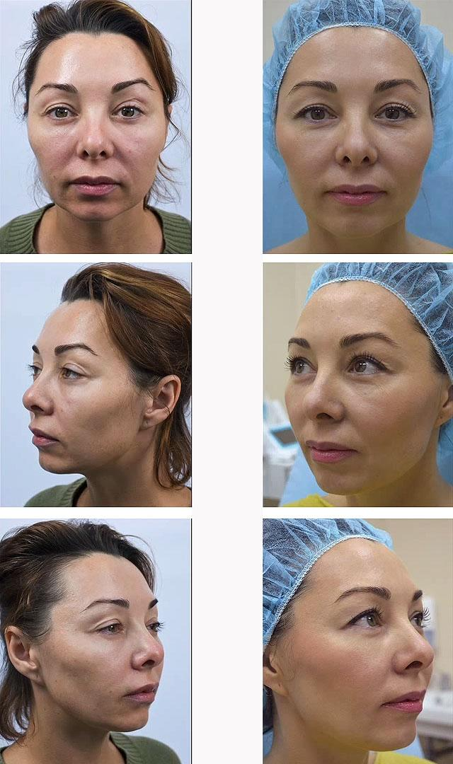 Meso-Wharton P199™ - возраст 42 года, проведено 6 процедур