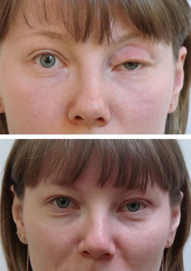 Блефароптоз: пациентка до и после коррекции