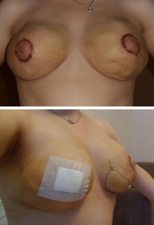 Большие соски маленькой груди