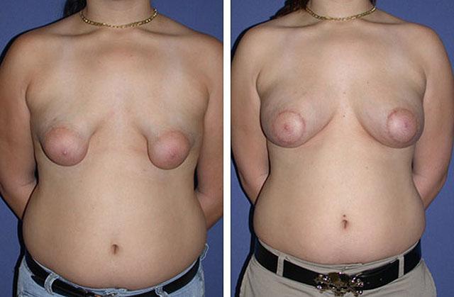 чувствительность груди после увеличения