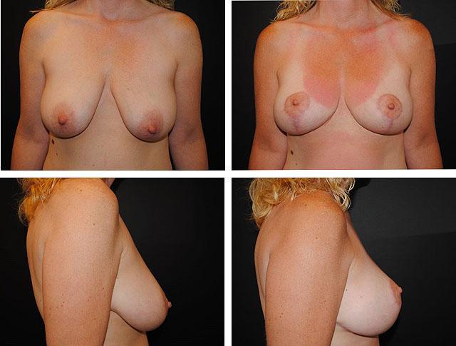 Фото до и после подтяжки груди с использованием якорного разреза