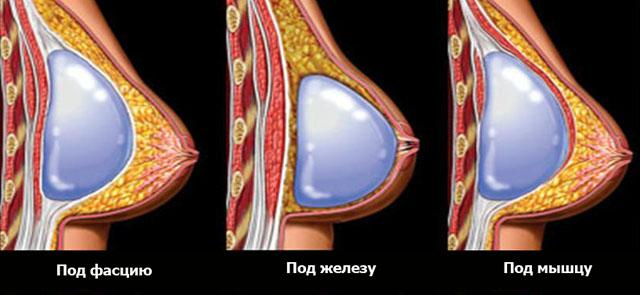 Способы постановки имплантанта