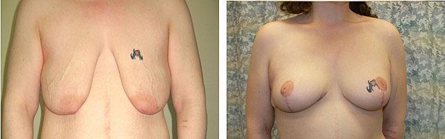 Т-образная мастопексия