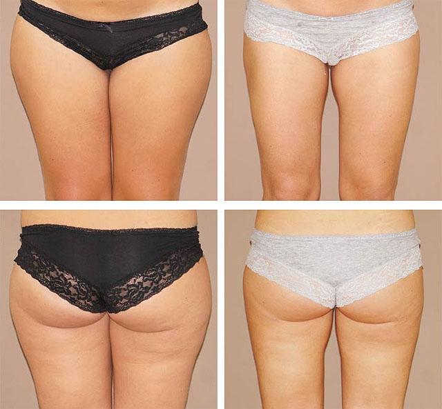 способы методы похудения
