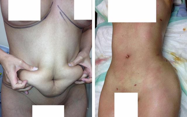 Хирургическая липосакция зоны живота и мини-подтяжка