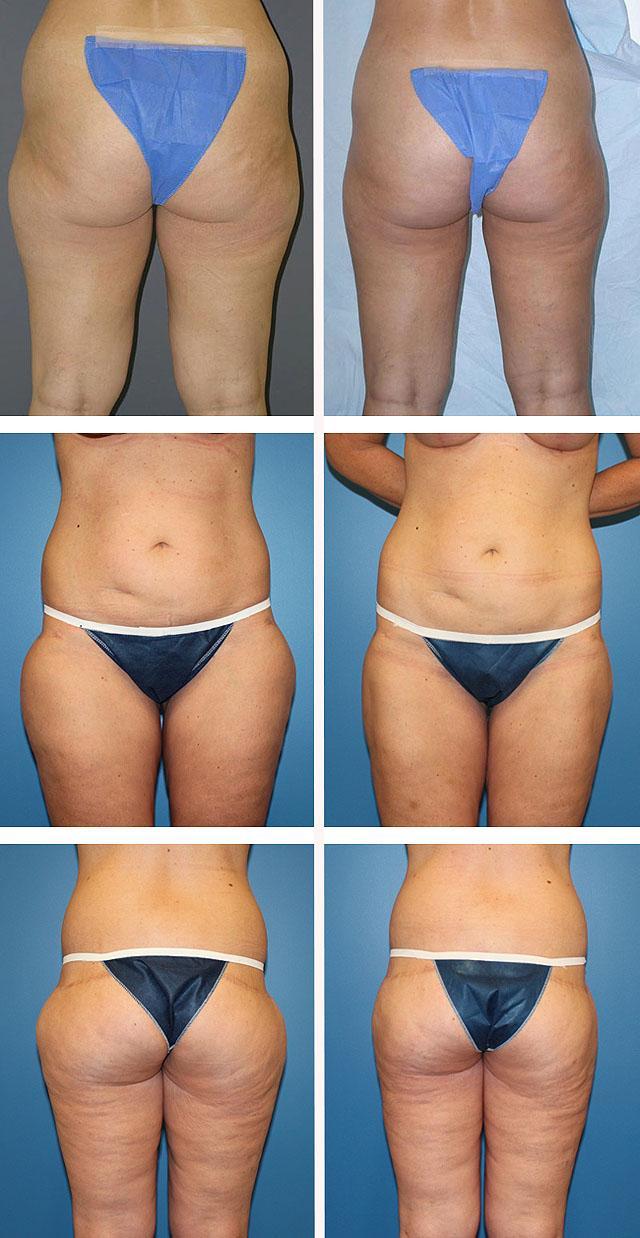 5 разовое питание для похудения принципы
