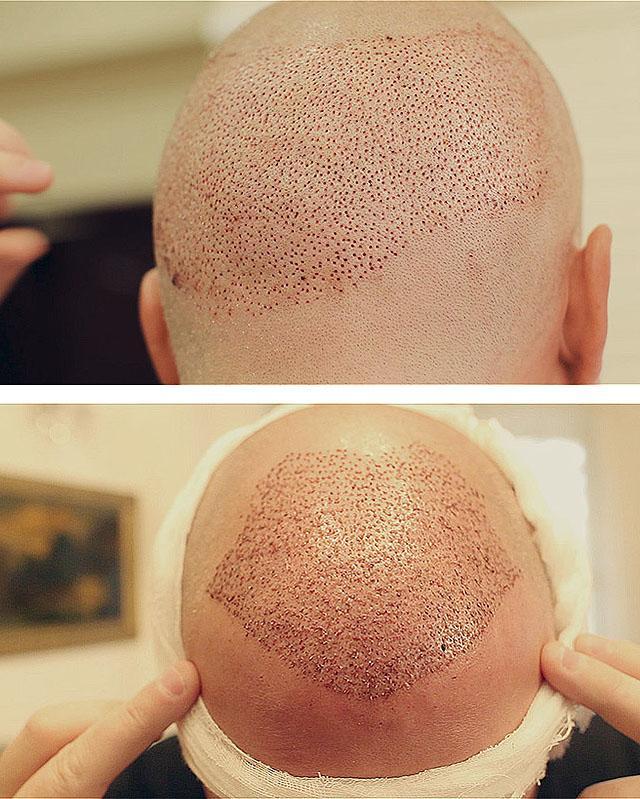 пересадка волос fue методом