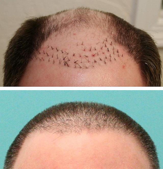 Хорошие средства от выпадения и роста волос