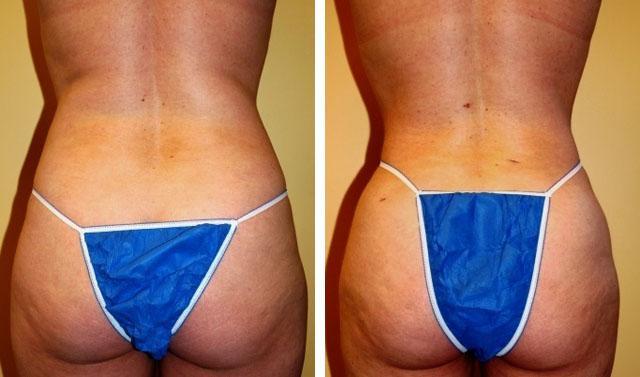 водоструйная липосакция фото до и после