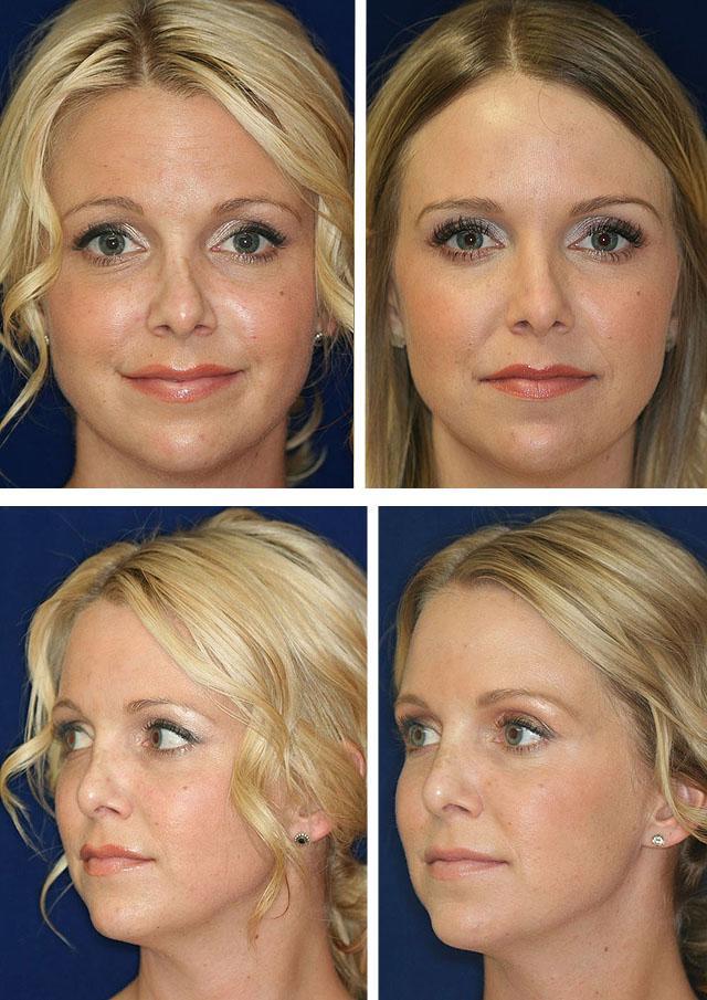 фото до и после безоперационной ринопластики
