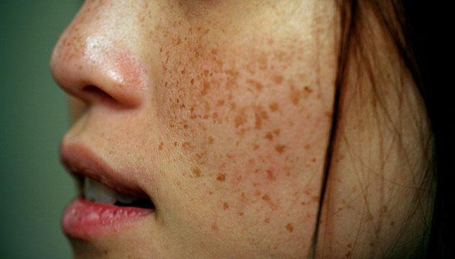 как лечить пигментные пятна на лице